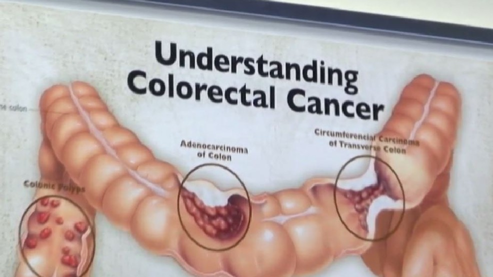 Colorectal Cancer Is Being Seen More In Younger People Khqa